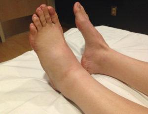 Отек ног при сердечной недостаточности фото