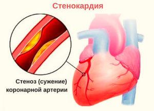 симптомы стенокардии фото