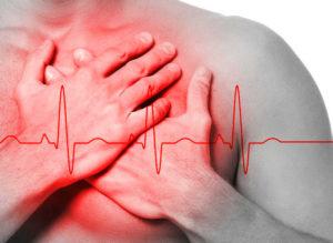 симптомы аритмии сердца фото