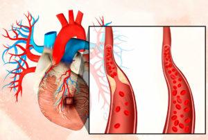 причины инфаркта миокарда фото