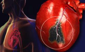 симптомы инфаркта миокарда фото