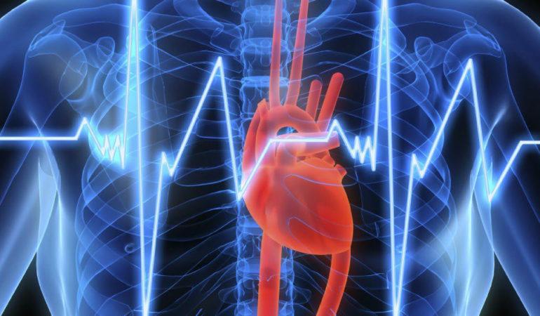 симптомы аритмии сердца