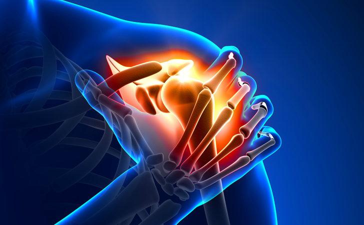 Боль в руке отдает в шею