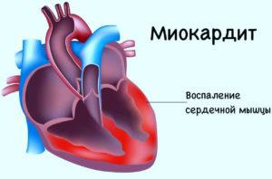 Симптомы миокардита фото