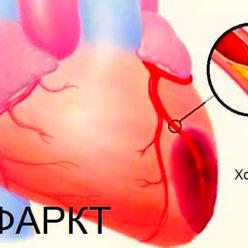 болит сердце после инфаркта
