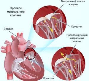 щелчки в сердце фото