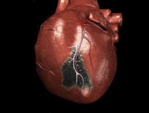 боли сердце после инфаркта фото
